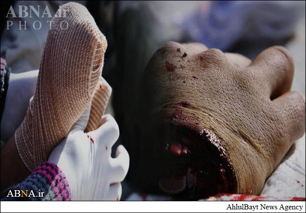 مجازات داعشی سارق +عکس(۱۸+)