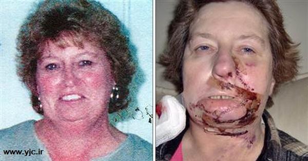 5 اتفاق عجیب درحین عمل جراحی+تصاویر