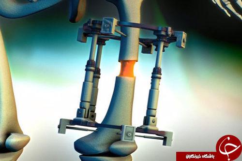 عملجراحی عجیب برای قدبلندشدن +عکس