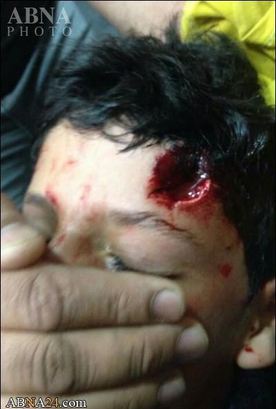 شلیک گلوله به سرکودک بحرینی +عکس+18