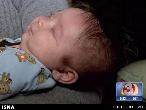 تولد نوزاد بدون چشم در آمریکا +عکس