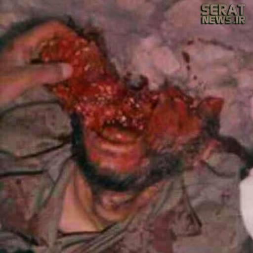 عکس/ سر متلاشی شده شهید همت