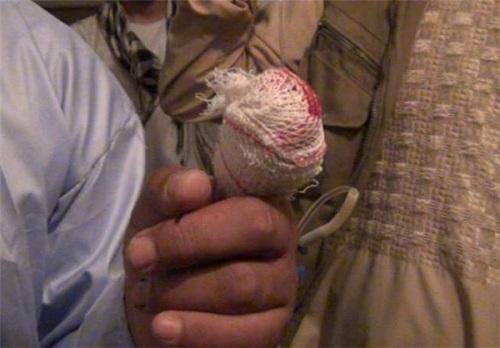 قطع انگشت رای دهندگان در افغانستان+تصاویر