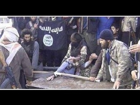 داعش دست یک کودک فقیر را قطع کرد +عکس