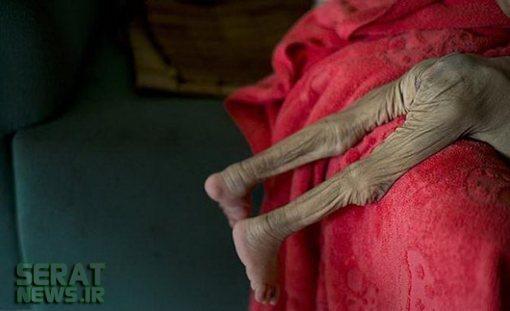 تصاویر / بیماری دردناک نوزاد چینی