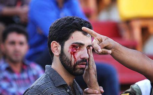 عکس/ حاشیه خونین پدیده و سپاهان