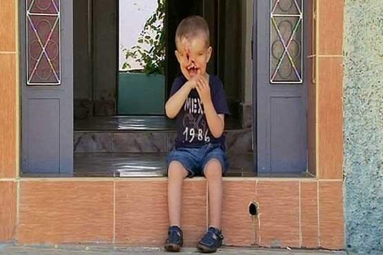 پسری در آرزوی زندگی عادی +تصاویر