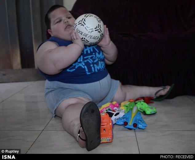 کودکی هر ماه 3 کیلو چاق میشود+عکس