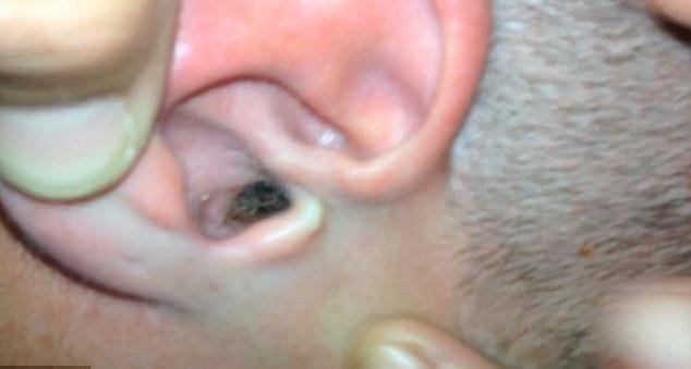 خارجکردن حشرهای از گوش یک مرد +تصاویر