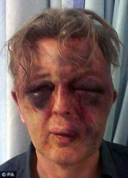 شکنجه پروفسور تا سر حد مرگ+ تصاویر