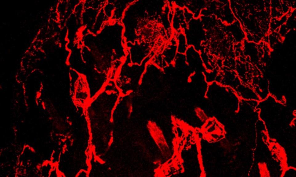 اعصاب بدنتان در زیر میکروسکوپ +تصاویر