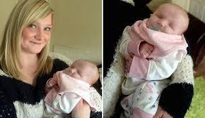 نوزادی بدون چشم متولد شد +عکس