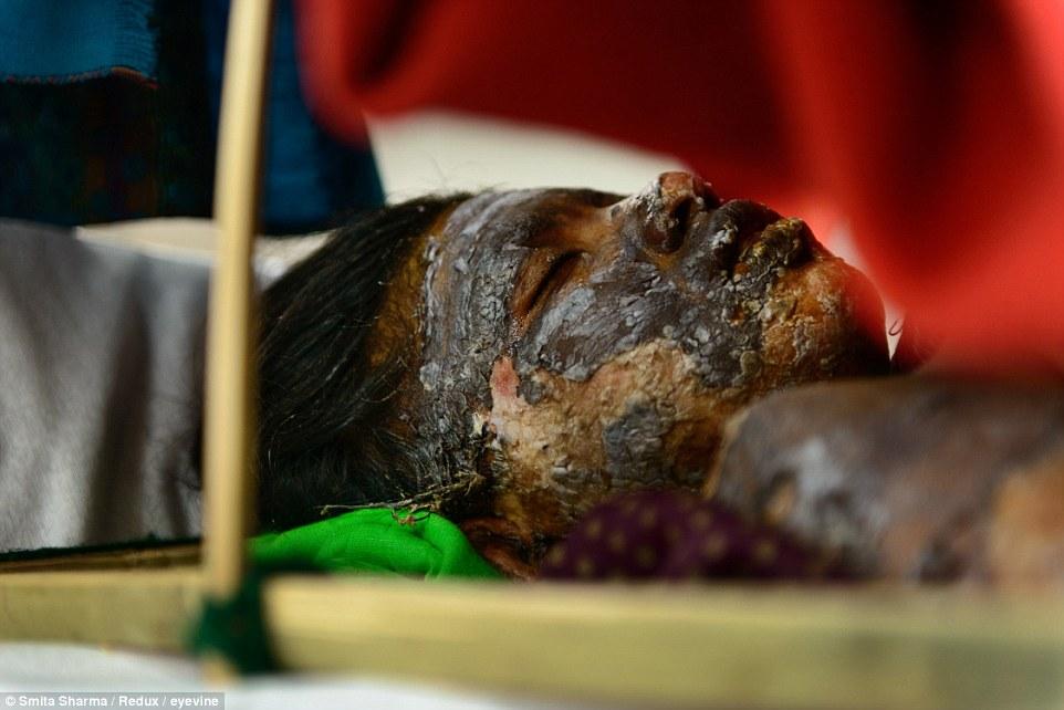 آتشزدن دختر 15ساله پس از تعرض +عکس