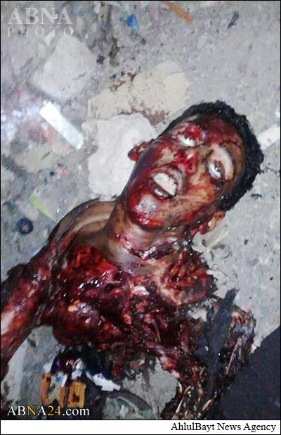 انفجارپیشازموعد یک داعشی!+عکس(18+)