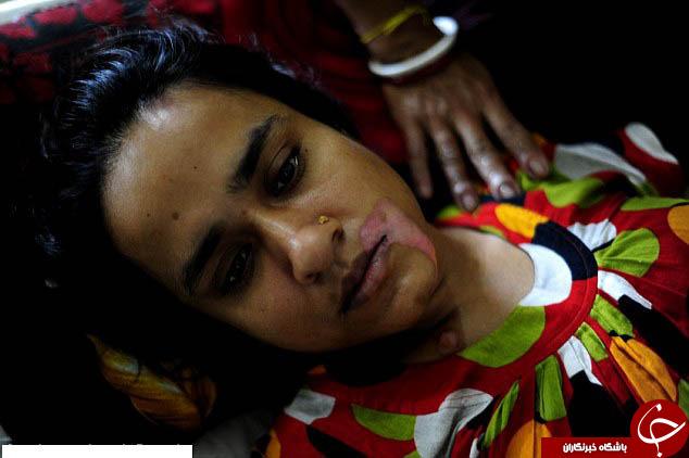 پدرشوهری که در دهان عروسش اسید ریخت +تصاویر