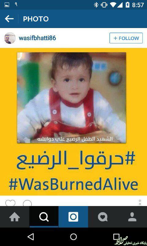 تصاویر نوزادی که صهیونیستها زندهزنده سوزاندند (18+)