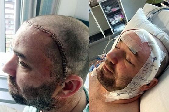 مردی که 100بار سکته مغزی کرد!+عکس