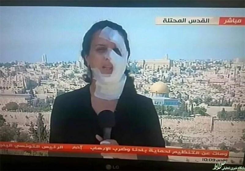 خبرنگار زخمی زن روی آنتن زنده +عکس