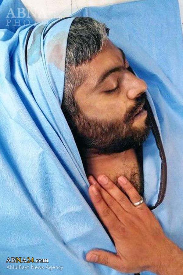حاج «نادر حمید» پس از شهادت +عکس