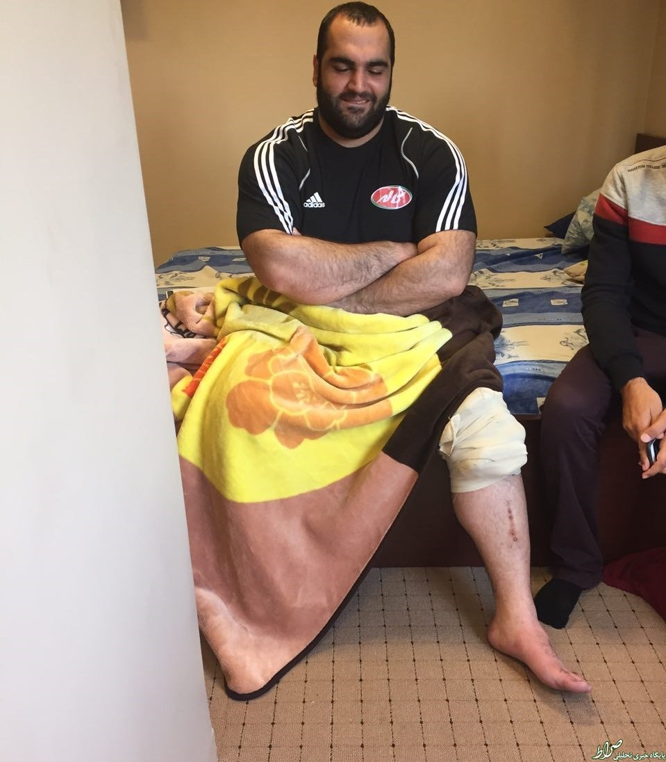 عکس بهداد سلیمی پس از مصدومیت