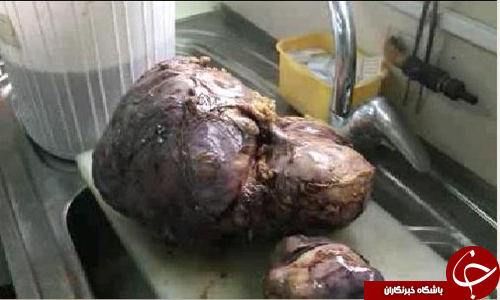 خروج تومور 8 کیلویی از بدن بیمار+تصاویر