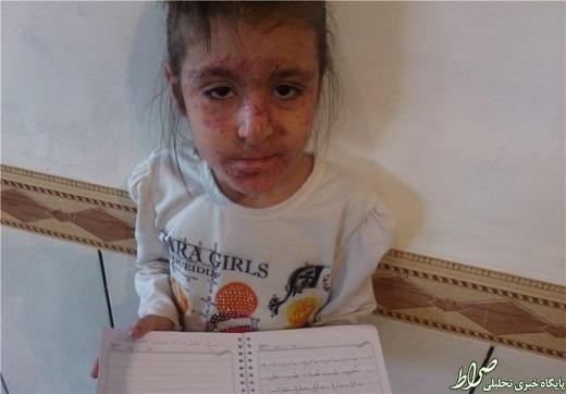 دستور سردار اشتری برای کمک به دختر لرستانی +عکس