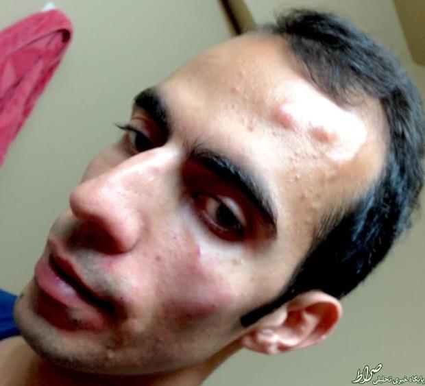 حمله به یک دانشجوی ایرانی در کانادا +عکس
