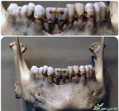 عکس/دندانهای ترمیم شده 4000 سال پیش