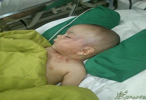 تصاویر دلخراش از آزار نوزاد 5 ماهه!!
