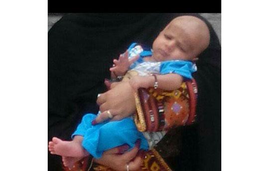 مرگ تلخ نوزادسراوانی در اتاقعمل +عکس