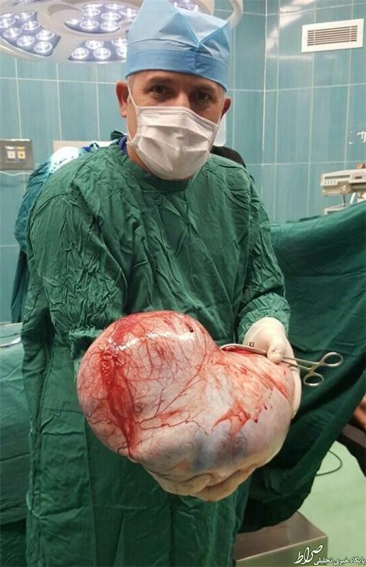 خارج کردن توده ۱۳کیلویی از بدن دختر 12 ساله +تصاویر