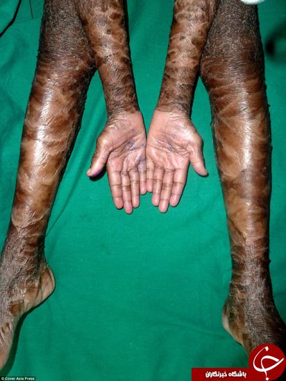 کودکانی عجیب با پوست مار +تصاویر