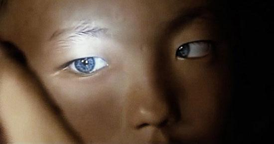 چشمان اين بچه پزشکان را حيرتزده کرد