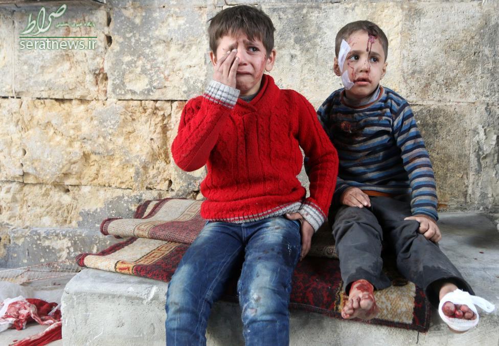عکس/کودکان مجروح در بمباران حلب