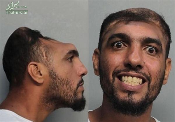 زندگی عجیب مردی با سر نصفشده +تصاویر