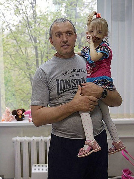 دختر بچه روسی بدون لب و چانه +تصاویر
