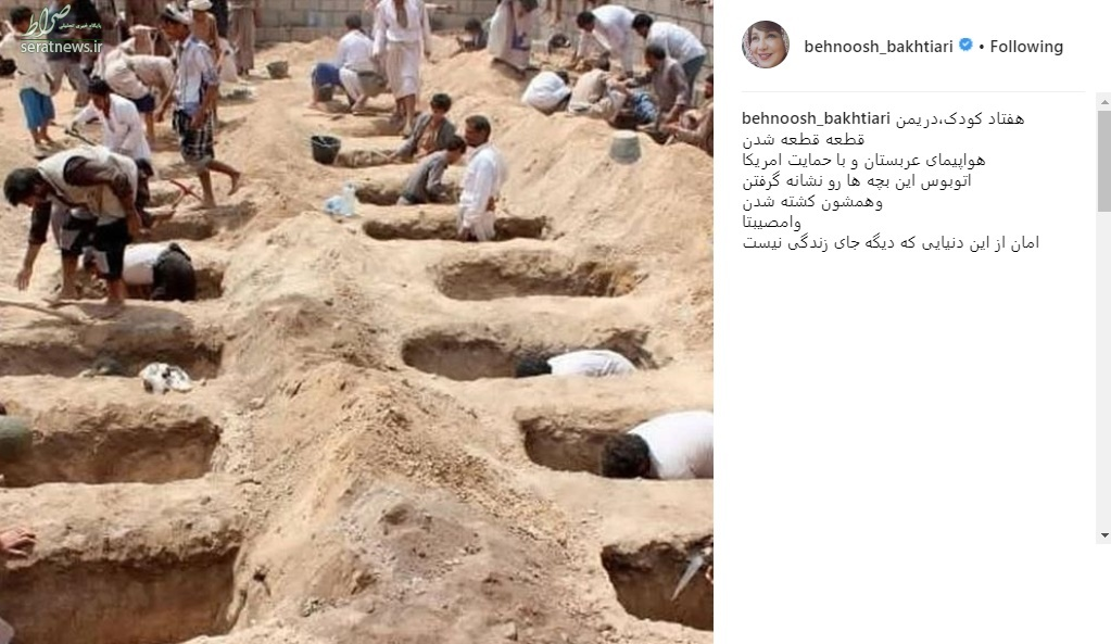 عکس/ واکنش بهنوش بختیاری به کشتار کودکان یمنی