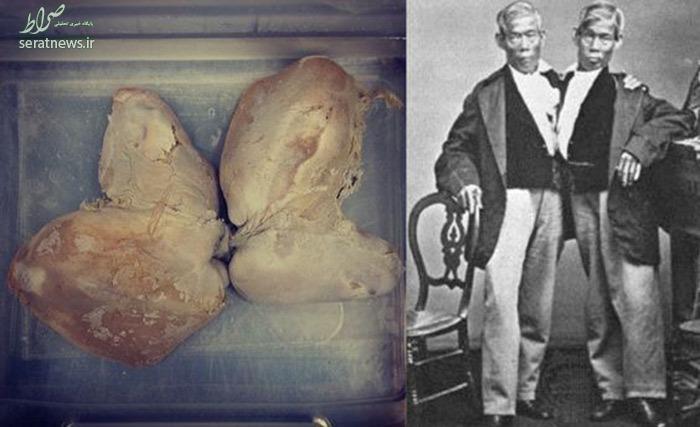 جسد وحشتناک زن مرموز و کتابهایی با پوست انسان + تصاویر