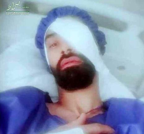 فوتبالیست ملی پوش ایرانی نابینا شد +عکس