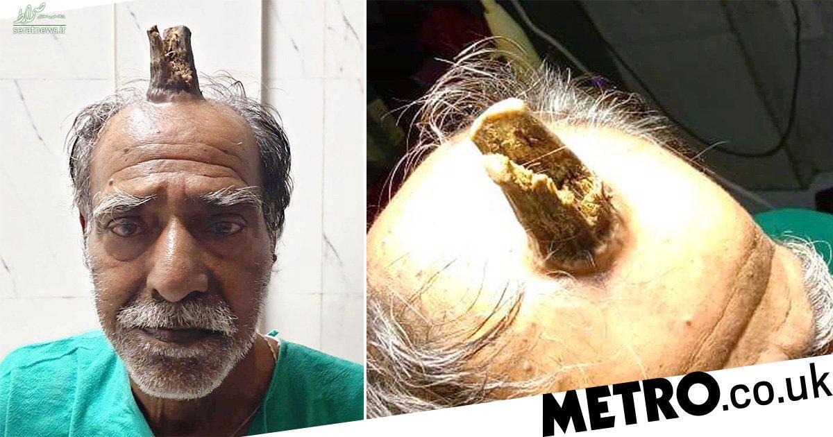 مرد کشاورز شاخدار زیر دست دکترها افتاد +عکس