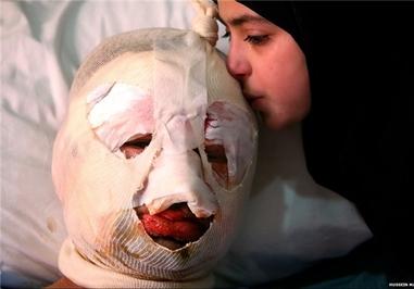 انفجار خودروی بمبگذاری شده در مرز لبنان و سوریه