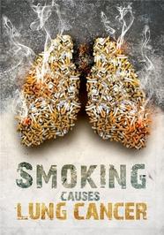 سیگار کشیدن باعث مرگ میشود.