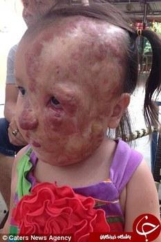 تومورهایی در صورت دختر , تومورهای صورت دختر ویتنامی , جراحی پلاستیک دختر ویتنامی , تومورهای کشنده در صورت