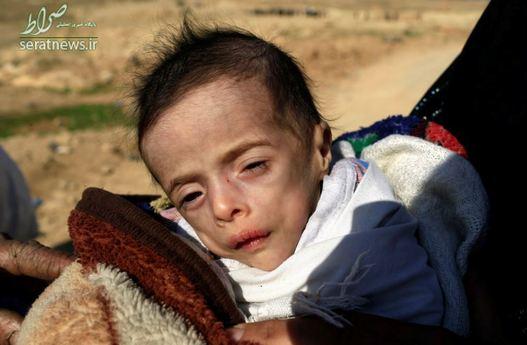 بتول بشیر احمد کودک 5 ماهه عراقی که از خانه اش در موصل آواره شده مبتلا به کم شدن آب بدن شده