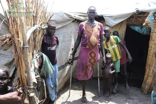 یک زن در سودان جنوبی کا پای خود را بر اثر حمله تمساح از دست داده است